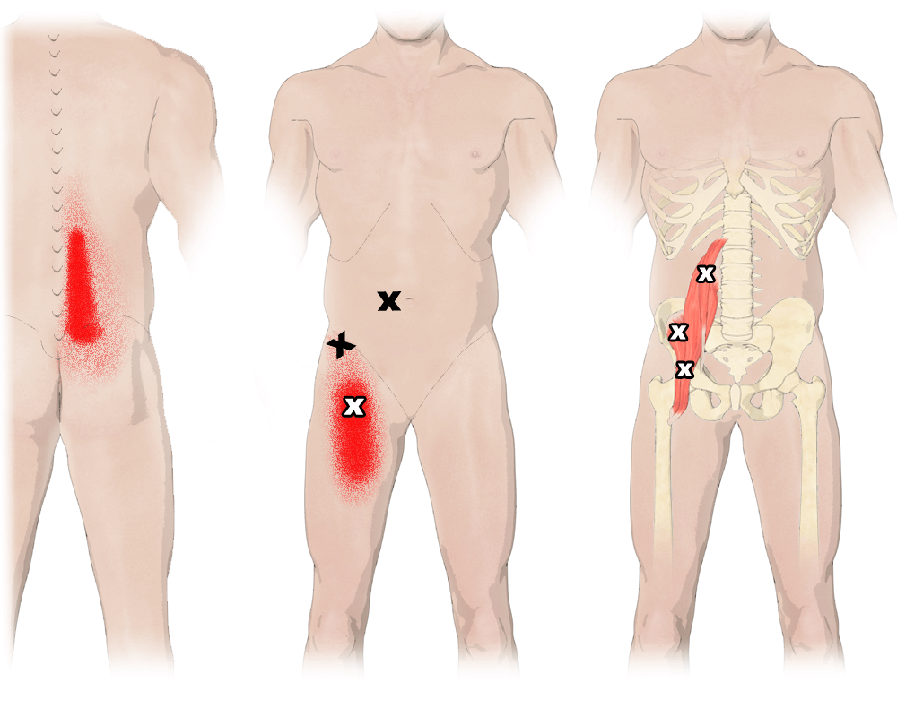 Trigger Points in the Iliopsoas Muscle